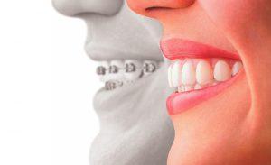 Cursos de ortodoncia