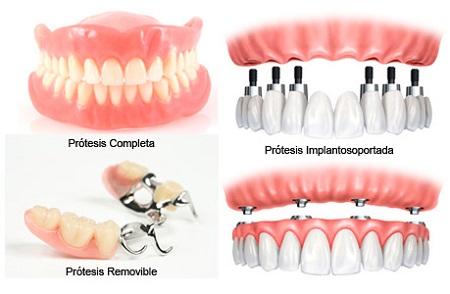 prótesis odontológicas